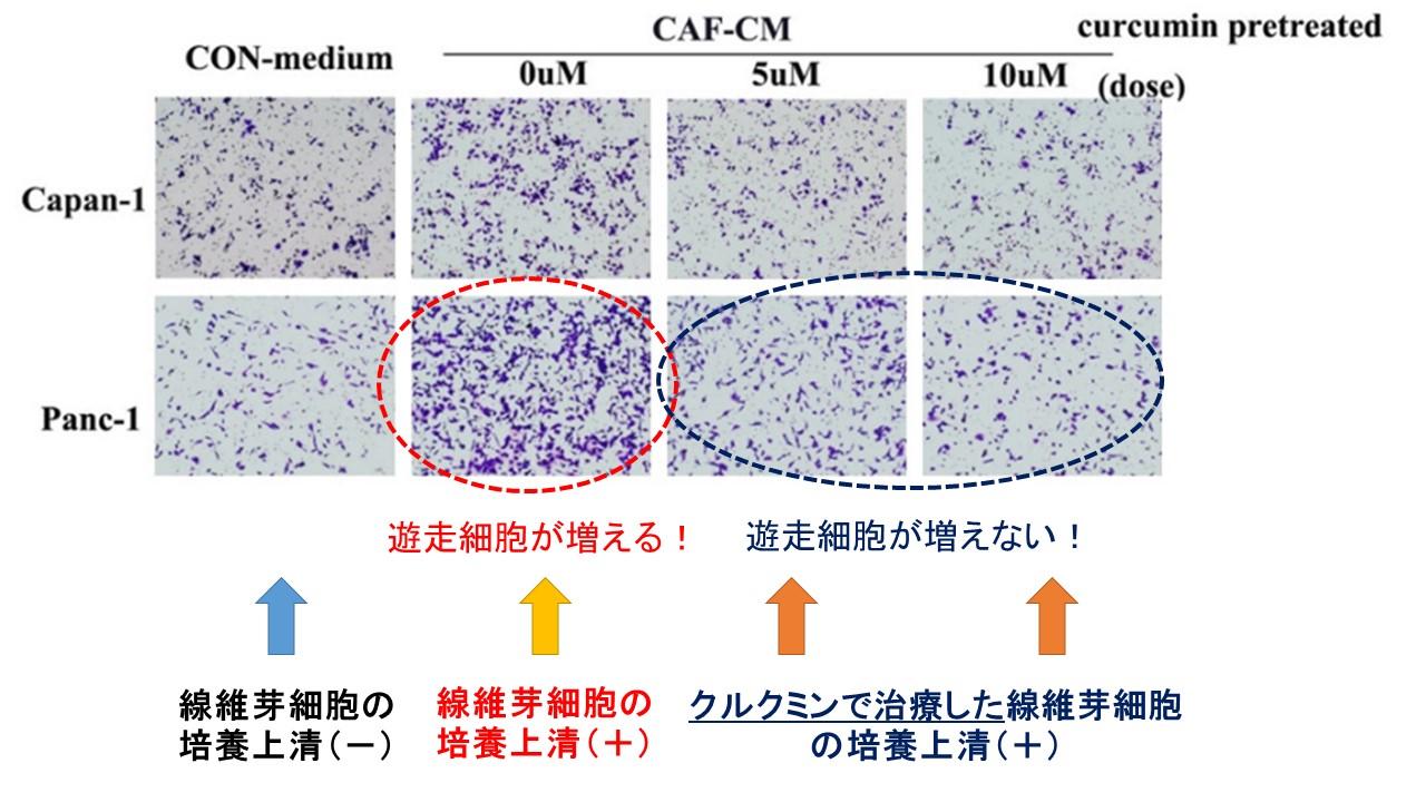 クルクミンの線維芽細胞治療と膵臓がんの遊走刺激