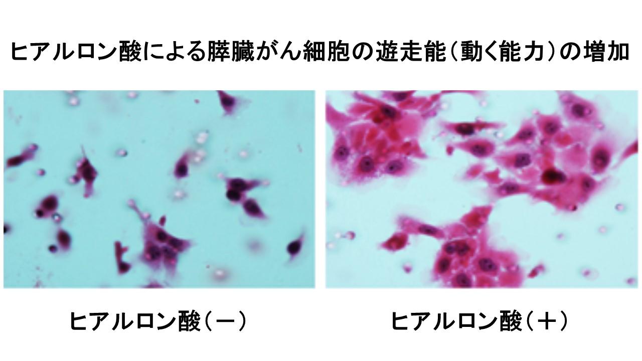 ヒアルロン酸による膵癌細胞の遊走刺激