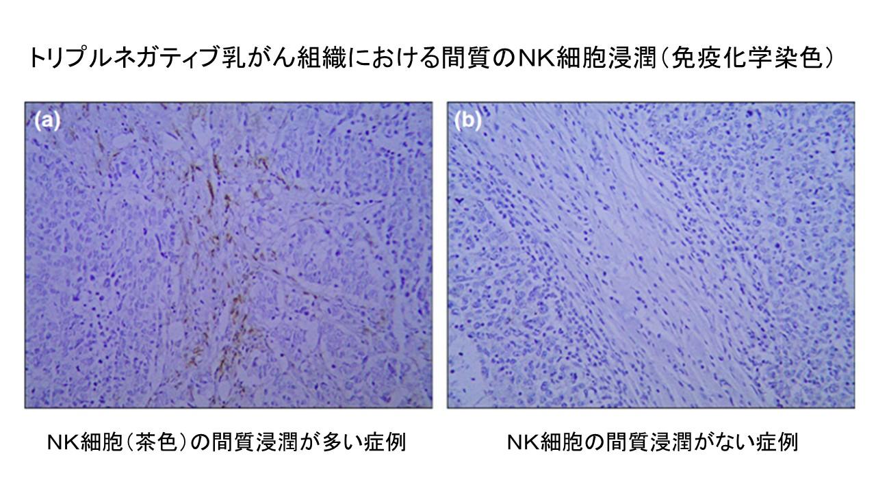 トリプルネガティブ乳がん組織NK細胞