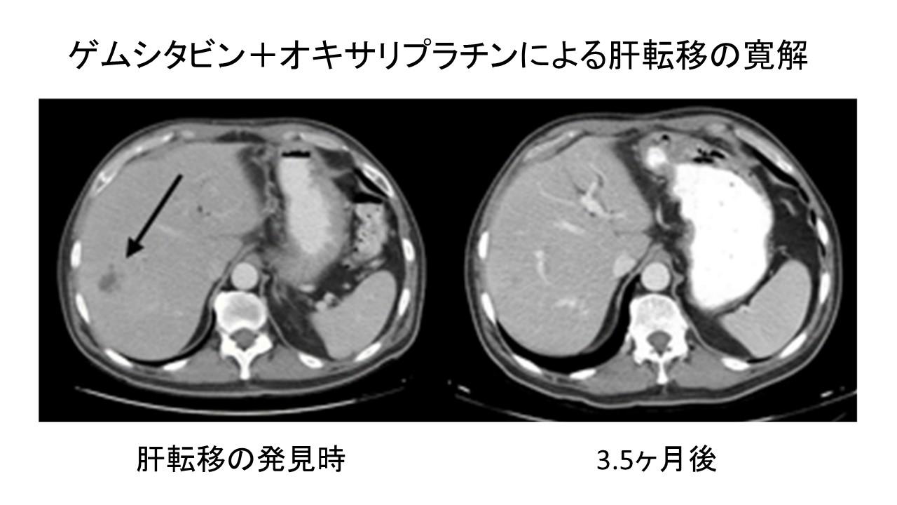 膵癌の肝転移寛解