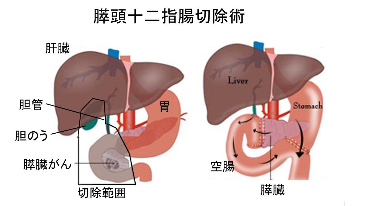 膵頭十二指腸切除術シェーマ