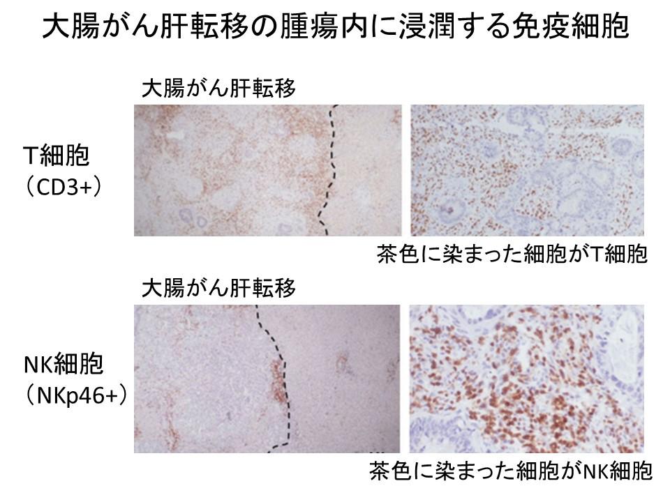 大腸がん肝転移内浸潤免疫細胞