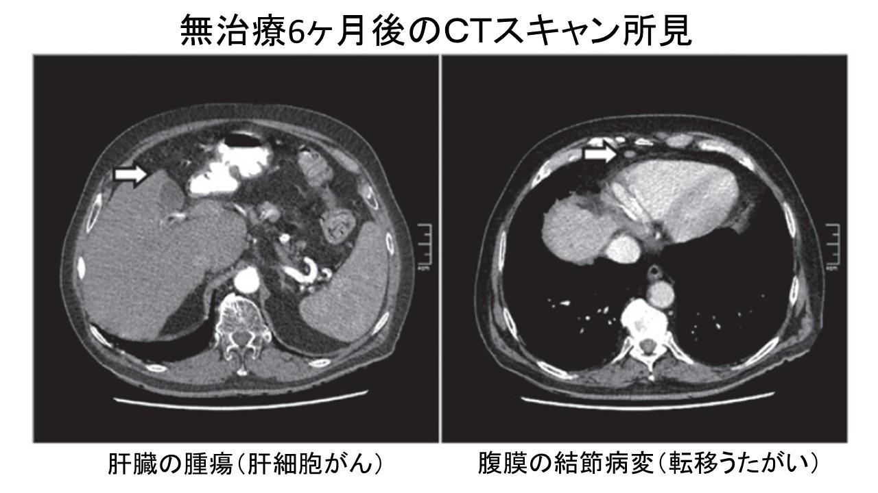 肝細胞がん自然退縮例CT6ヶ月後