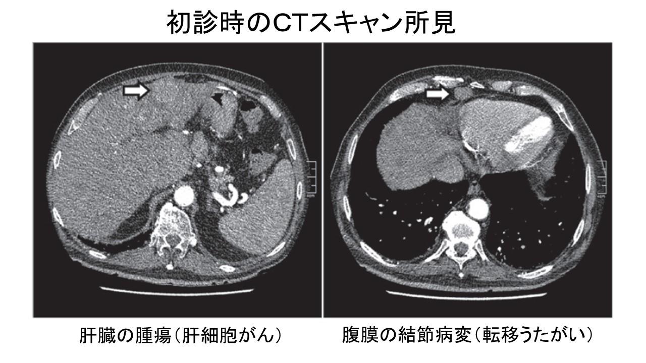 肝細胞がん自然退縮例CT初診時