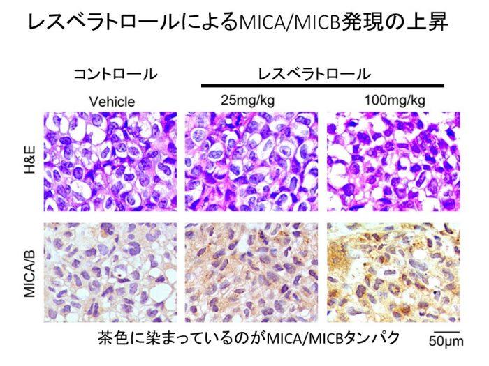 レスベラトロール乳がんMICAB上昇