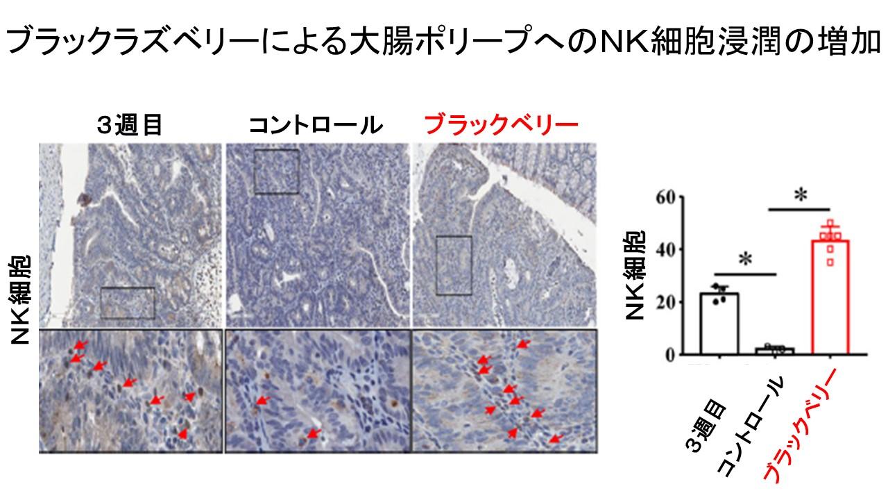 ブラックラズベリーによるNK細胞浸潤の増加