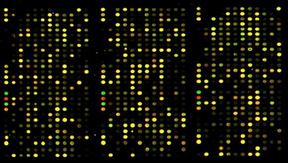 消化器がん(胃・大腸・胆道・膵臓がん)を早期に発見する遺伝子マイクロアレイ血液検査とは?