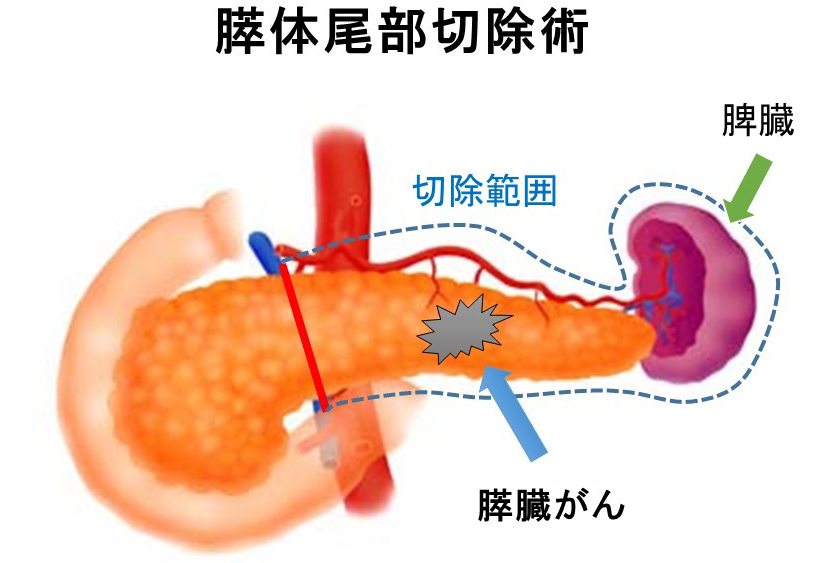 Distal pancreatectomy