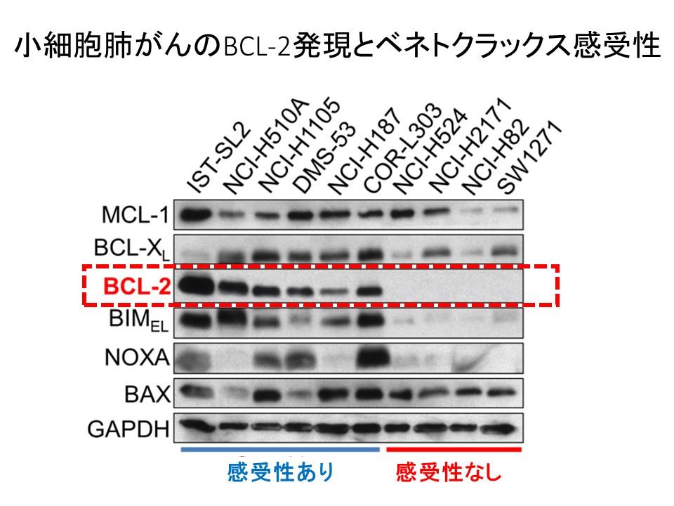 小細胞肺がんセルラインBCL-2発現とベネトクラックス感受性