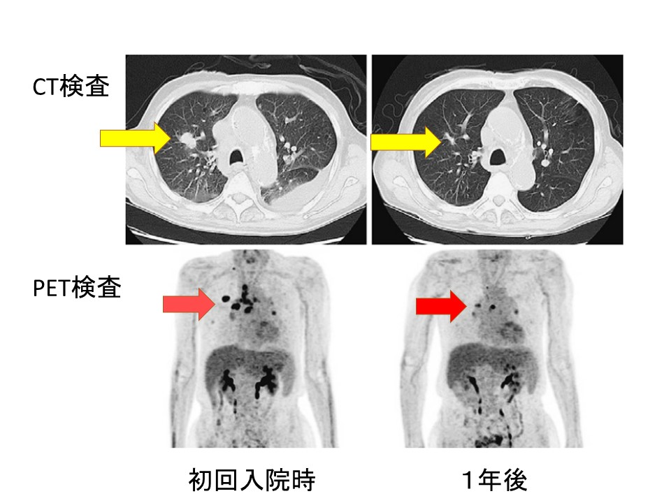 肺がん自然退縮 画像検査