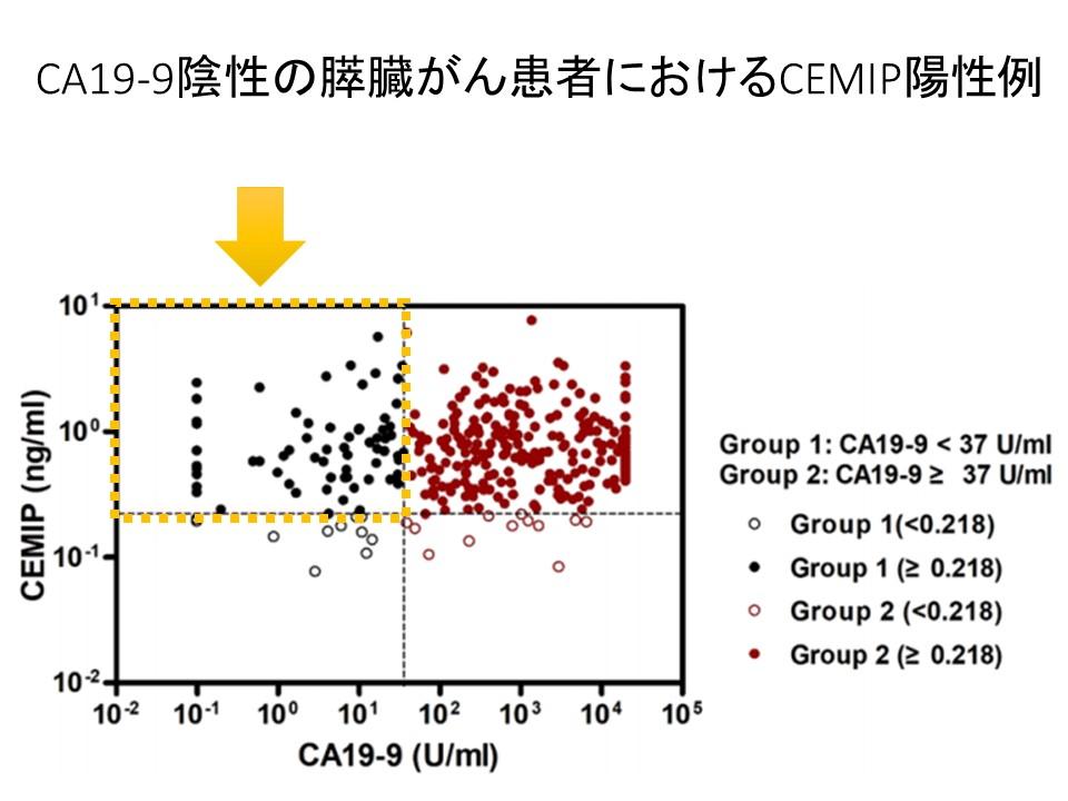 CA19-9陰性膵癌におけるCEMIP陽性