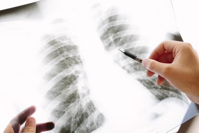 ステージ4のがんが治療せずに自然に治る!肺がん(扁平上皮癌)の自然退縮例