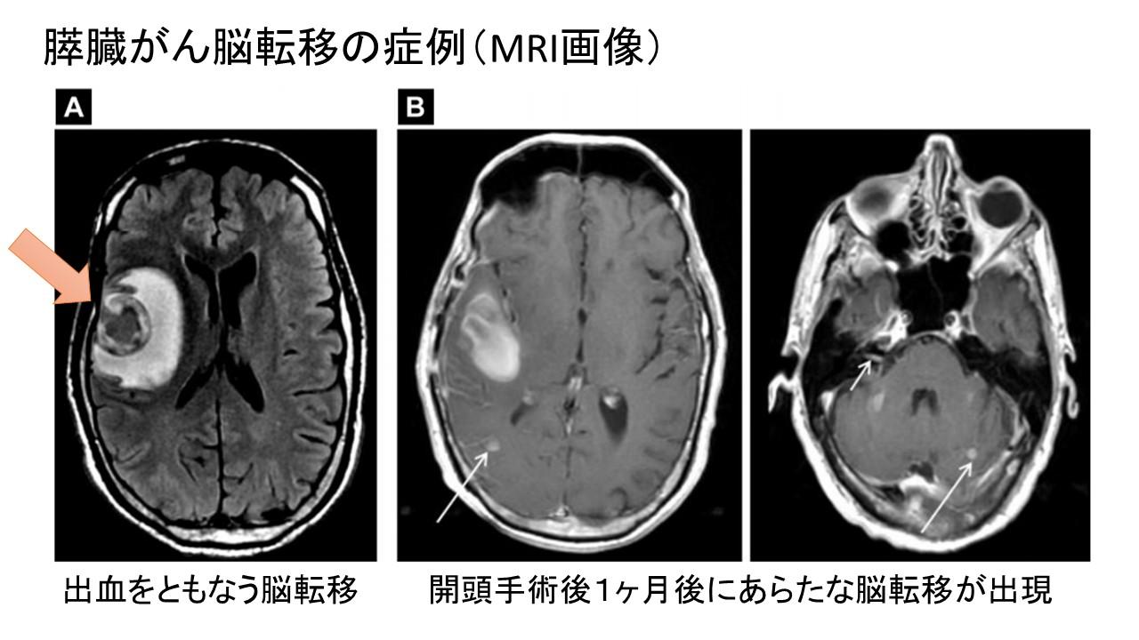 膵臓がん脳転移症例MRI