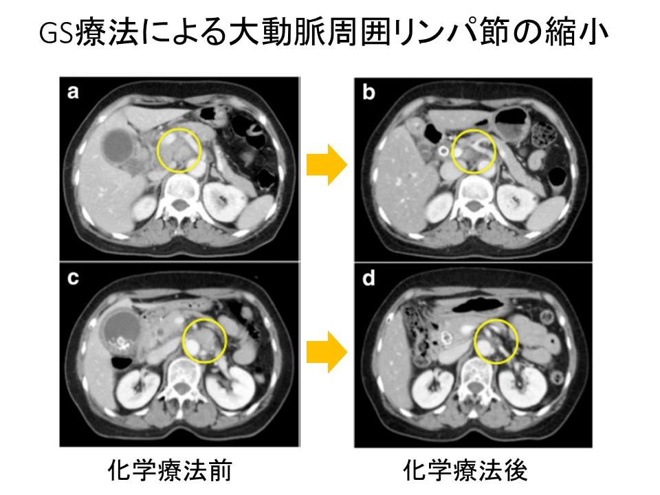 CT胆管癌GS療法