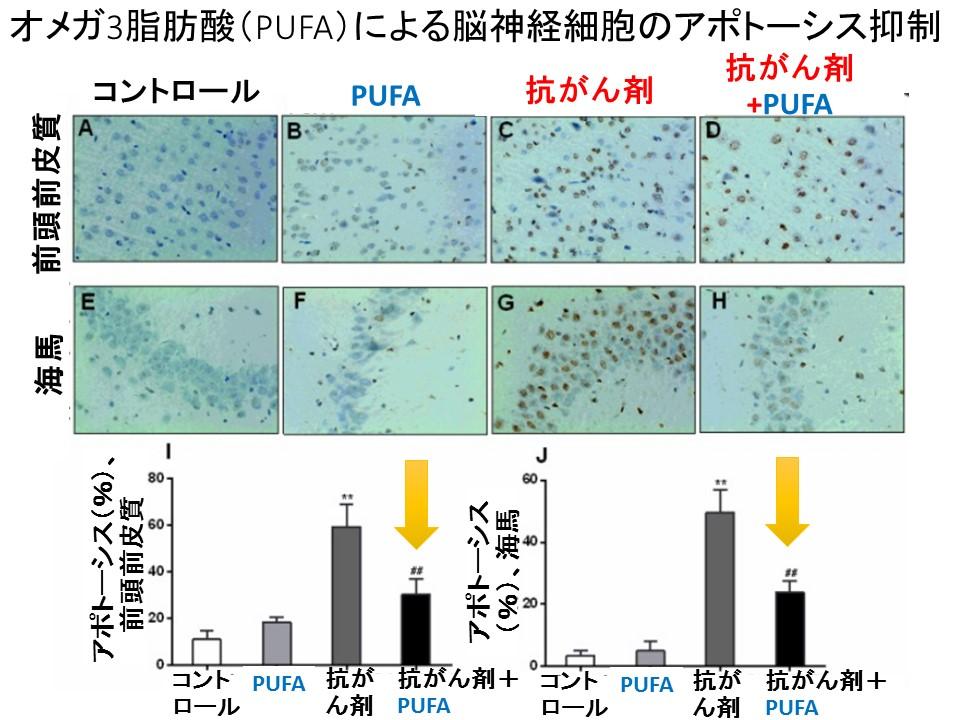 PUFAによる脳神経細胞のアポトーシス抑制