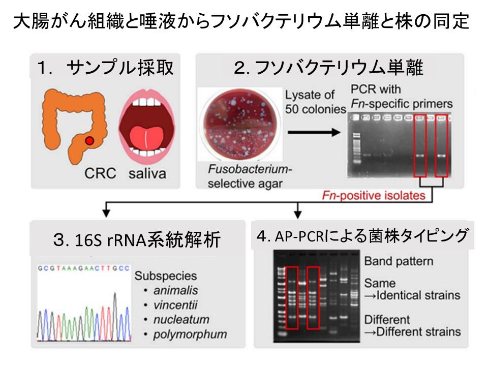 大腸癌と唾液からのフソバクテリウム菌株同定